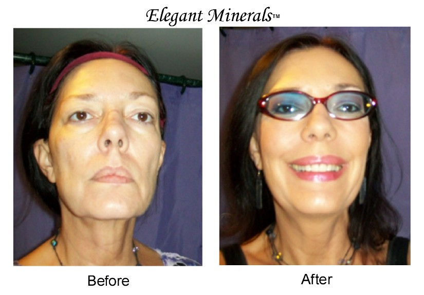 8-victoria-before-after-picture-elegant-minerals.jpg
